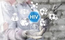 Trong hàng chục năm, các nhà khoa học không ngừng tìm cách loại bỏ triệt để HIV/AIDS. Ảnh: Shutterstock