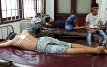Ba thanh niên đang điều trị tại bệnh viện