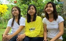Khuôn mặt dị dạng sau khi tiêm filler giá rẻ của ba cô gái. Ảnh: GMA