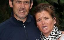 """Rebecca và Nick với hàm răng """"xộc xệch"""" vì tự nhổ"""