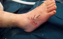 Chân phải của bé D được nối thành công.