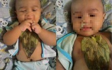 Bé gái bị bỏng nặng vì đắp lá trầu