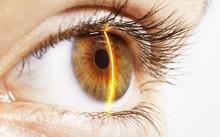 Ánh sáng mặt trời quá mạnh có thể gây tổn hại mắt
