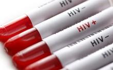 Quan hệ tình dục bừa bãi là nguyên nhân chủ yếu dẫn tới việc lây nhiễm HIV. Ảnh: Istock.