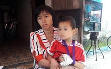 Nghệ An: Cô giáo mầm non bị tố đánh gãy ngón tay bé trai