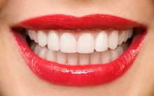 Sở hữu hàm răng trắng sáng chưa chắc đã tốt?