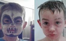 Cậu bé đã phải đi tắm để rửa hết lớp sơn do da mặt bị bỏng.