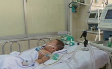 Đồng Nai: Cứu sống bé 2 tuổi bị xe tải tông chấn thương não