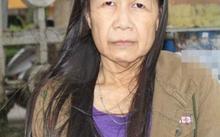 Nguyễn Thị Như trước và sau khi phẫu thuật thẩm mỹ.