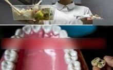 Hoảng hồn phát hiện răng lợn trong suất cơm hộp