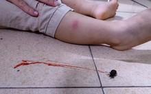 Tp.HCM: Bọ xít hút máu người tấn công bé 2 tuổi