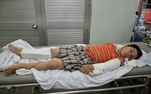 Bé trai 6 tuổi bị người tình của mẹ đánh gãy tay chân