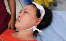 Bà Tượng tại bệnh viện và vết thương do con rể gây ra