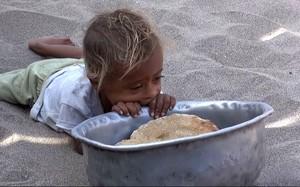 Chiến tranh, nạn đói: Cơn ác mộng của người Yemen