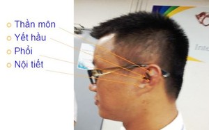 Vị trí các huyệt châm cứu ở tai để cai nghiện thuốc lá.