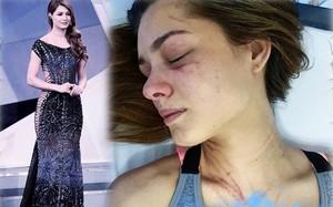 Hoa hậu Trái Đất Venezuela  2012 Osmariel Villalobos  bị ca sĩ Diosa cào cấu khắp người. Ảnh: DM.