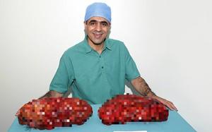 Hai quả thận của ông Ahmed Saeed Mohammed Omar, có kích thước rất lớn. Bên to nhất là 34x17 cm, trọng lượng 4,25 kg. Ảnh: Guinness World Records.
