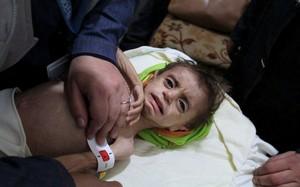 Một em bé tại Ghouta. Ảnh: AP