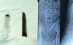 ưỡi dao Thái Lan trong cơ thể bệnh nhân trên phim X-quang và lưỡi dao khi được lấy ra.
