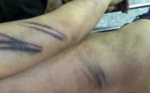 Hình ảnh những vết thương của bị can Minh được gia đình đưa lên mạng xã hội.