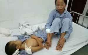 Hiện chị M. và cháu S. đang được điều trị tích cực tại Bệnh viện Đa khoa huyện Vân Đồn.