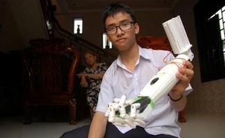 """Phạm Huy với sản phẩm """"cánh tay robot cho người khuyết tật"""""""