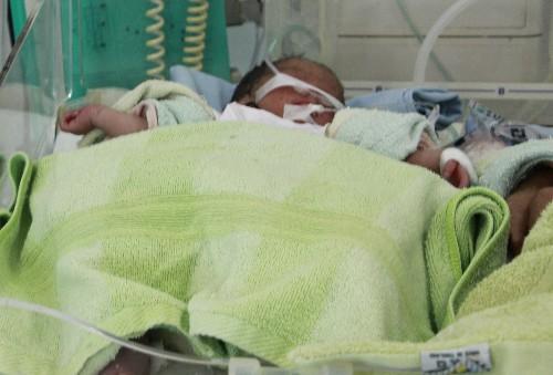 Bé gái sinh non đang được chăm sóc đặc biệt. Ảnh: Q.T.