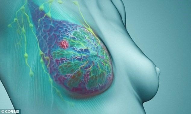 7 loại ung thư có khả năng chữa khỏi - ảnh 1