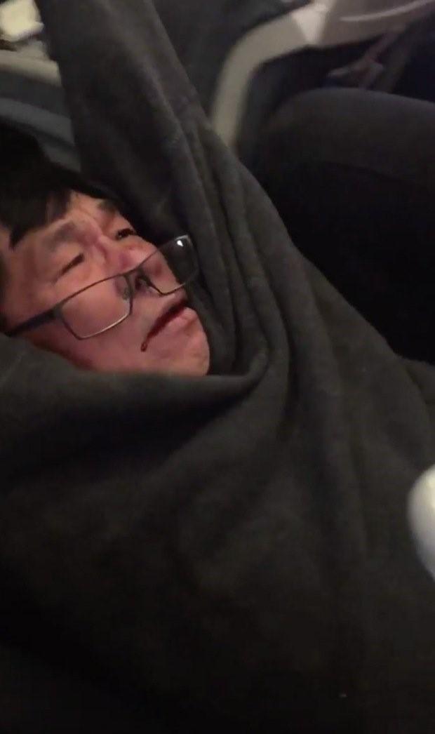 Bác sĩ gốc Việt có thể thành triệu phú nếu thắng kiện United Airlines - ảnh 1