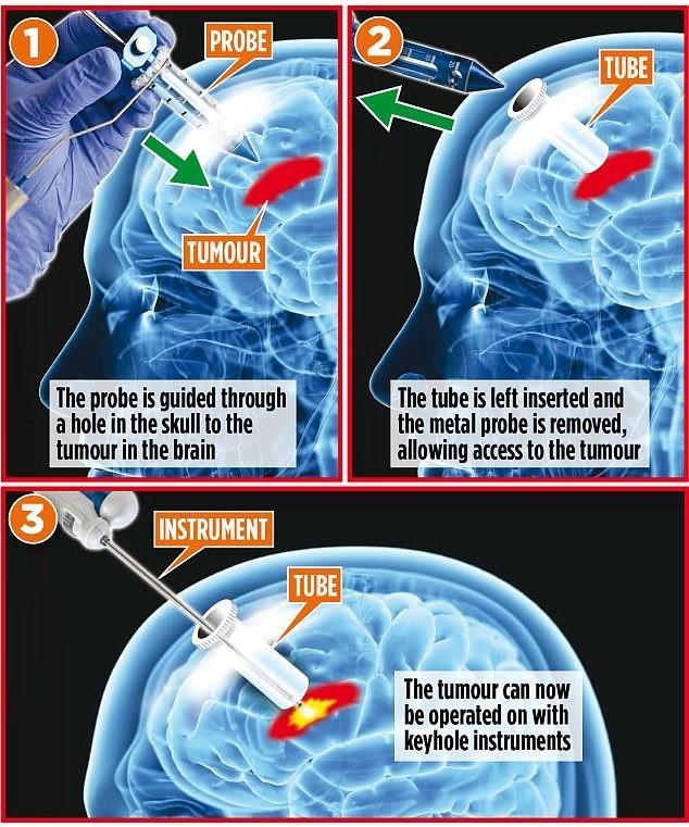 Phương pháp phẫu thuật u não không cần tách hộp sọ - ảnh 1