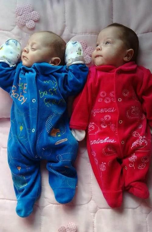 Cặp song sinh chào đời từ người mẹ chết não hơn 4 tháng - ảnh 1
