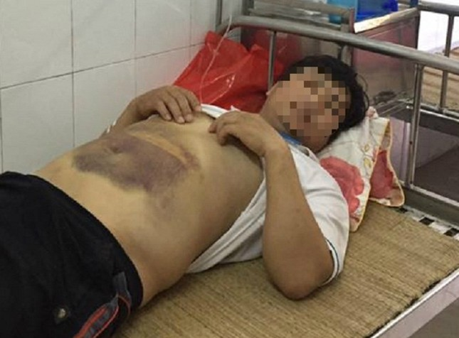 Hà Nội: Nhập viện cấp cứu sau khi công an mời lên làm việc - ảnh 1
