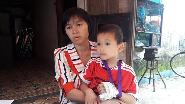 Nghệ An: Cô giáo mầm non bị tố đánh gãy ngón tay bé trai - ảnh 1
