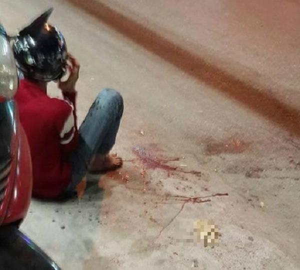 Thanh niên bị chém lìa tay ở TP.HCM tử vong vì chấn thương sọ não - ảnh 1