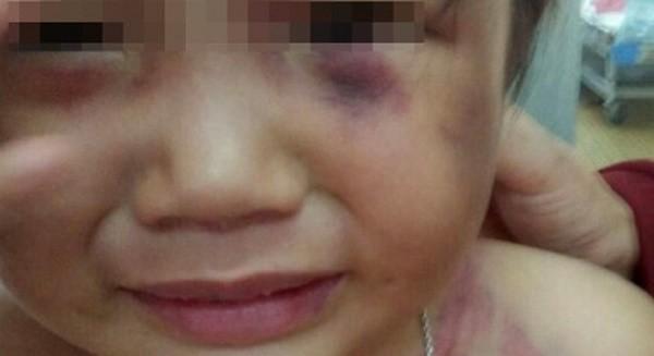 Bình Thuận: Bé 3 tuổi bị cha dượng đánh bất tỉnh chỉ vì 1 câu nói - ảnh 1