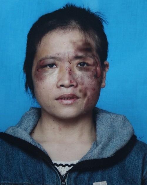 Vợ tố bị chồng bạo hành dã man vì bán hàng đa cấp  - ảnh 1