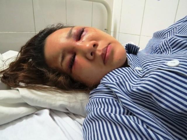 Thiếu úy công an bị tố đánh đập bạn gái nhập viện vì ghen tuông - ảnh 2
