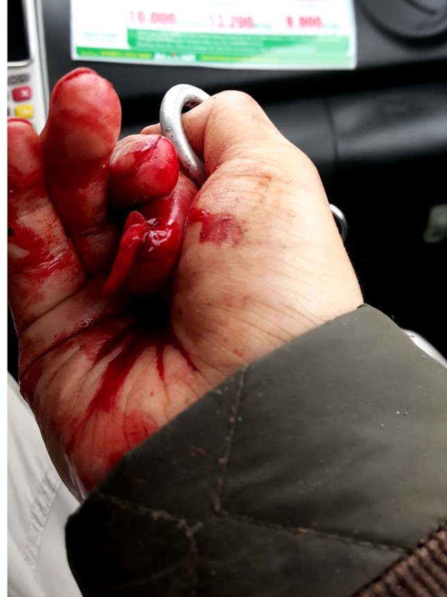Nhà báo Đỗ Doãn Hoàng bị ba đối tượng lạ mặt dùng gậy đánh dã man - ảnh 3