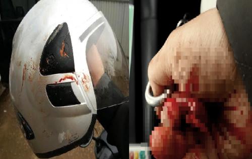 Nhà báo Đỗ Doãn Hoàng bị đánh bởi ít nhất 3 loại vật cứng - ảnh 1
