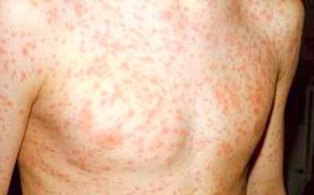 Dấu hiệu rõ rệt cho thấy bạn đã nhiễm HIV - ảnh 3