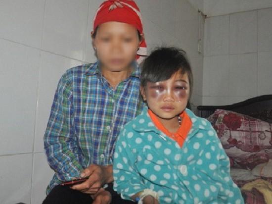 Lào Cai buộc thôi việc giáo viên đánh học sinh tím mặt - ảnh 1
