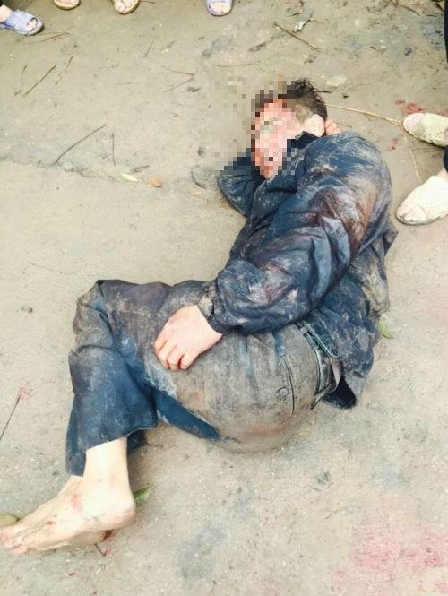 Đánh chết nghi phạm trộm chó nổ súng vào dân có trái luật? - ảnh 1