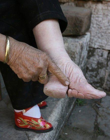 Tập tục bó chân của phụ nữ Trung Quốc xưa - ảnh 2