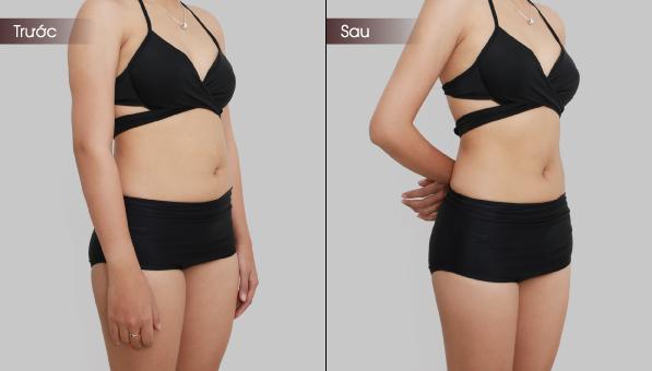 Có rau ngót bạn không bao giờ phải lo thừa cân hay béo bụng - ảnh 1