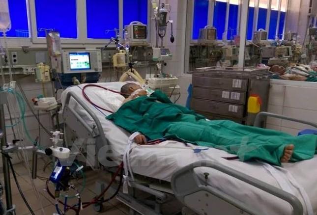 Cứu bệnh nhân suy hô hấp nặng bằng kỹ thuật trao đổi ôxy ECMO - ảnh 1