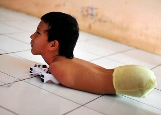 Nghị lực phi thường của bé trai không tay chân - ảnh 1