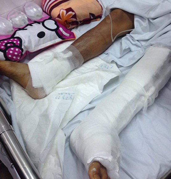 Bệnh nhân đau chân trái, bác sĩ mổ nhầm chân phải - ảnh 1