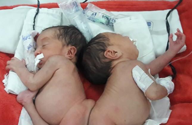 Cặp song sinh chào đời dính liền mông, không có hậu môn - ảnh 1