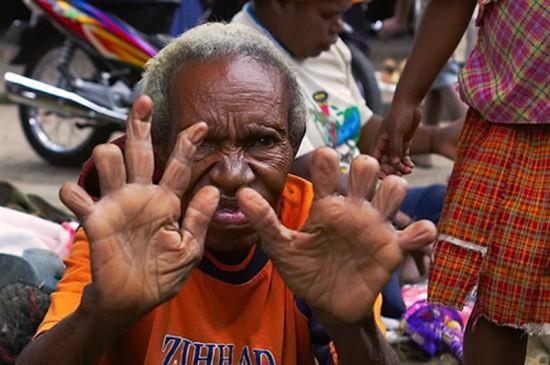 Nơi người dân cắt ngón tay để thể hiện nỗi buồn - ảnh 1