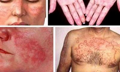 Cách phát hiện và chữa trị lupus ban đỏ - ảnh 2